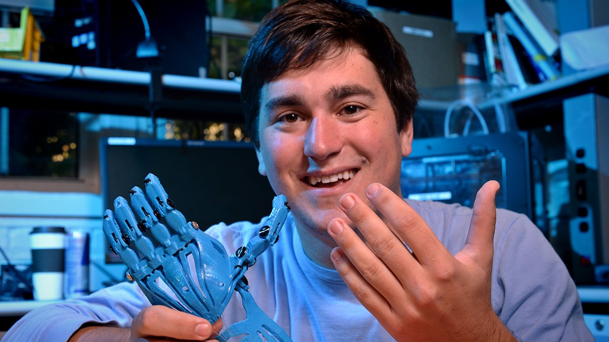 Jeff Powell holds a prosthetic hand.