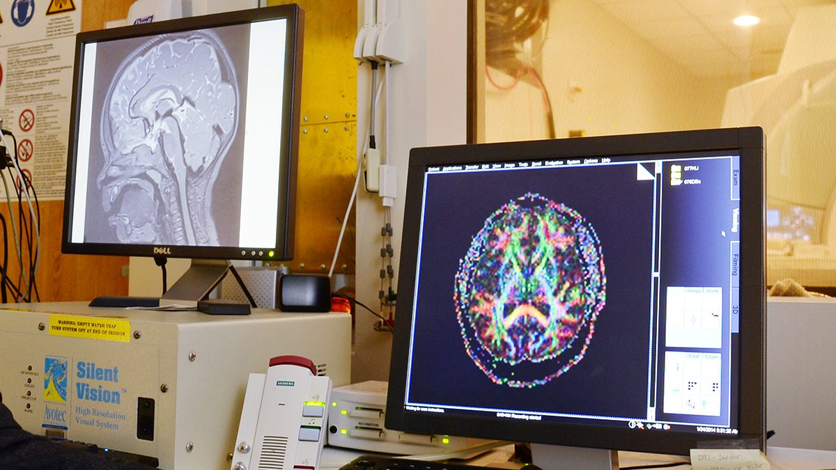 Brain scans are shown on two comptuer screens.