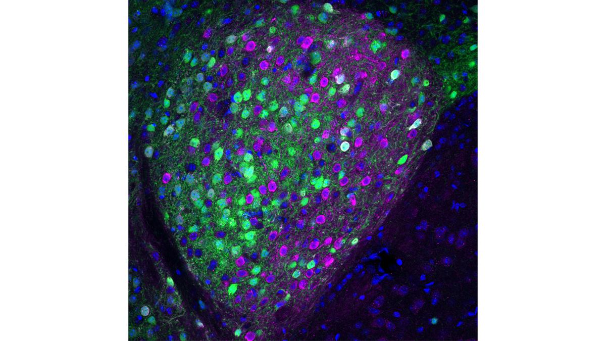Mouse Central Amygdala containing Prepronociceptin (green) and PKC delta (magenta) neurons.