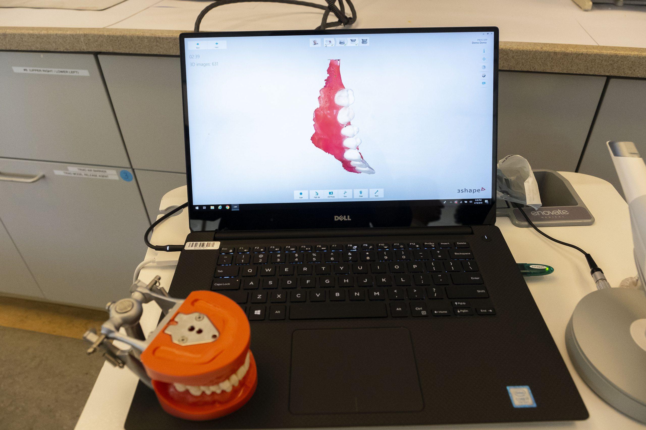 A model of teeth on a laptop.